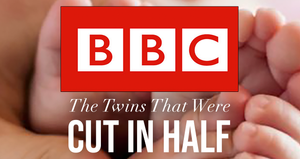 The Twins That Were Cut In Half