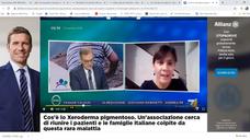 Associazione italiana xeroderma pigmentoso on Facebook Watch