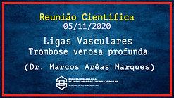 SBACV RS - Ligas Vasculares - Trombose Venosa Profunda - Dr. Marcos Arêas Marques - 051120