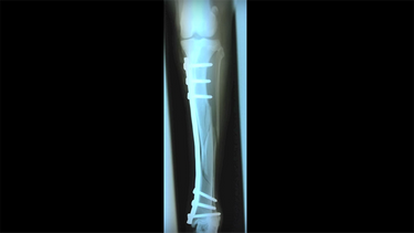 How to Repair a Fracture Without Approaching It