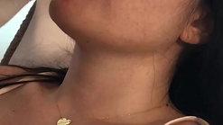 Filler labbra con cannula dr Zattoni