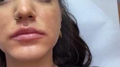 Filler labbra con cannula e contorno dr Zattoni