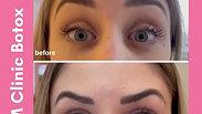 botox prima e dopo dr luca zattoni