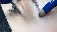 Botox cat eyes Dr Zattoni