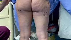 Demarcazione preoperatoria liposcultura dr Zattoni