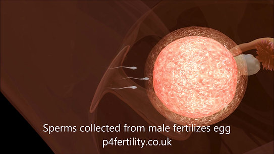 1. Summarizing an IVF