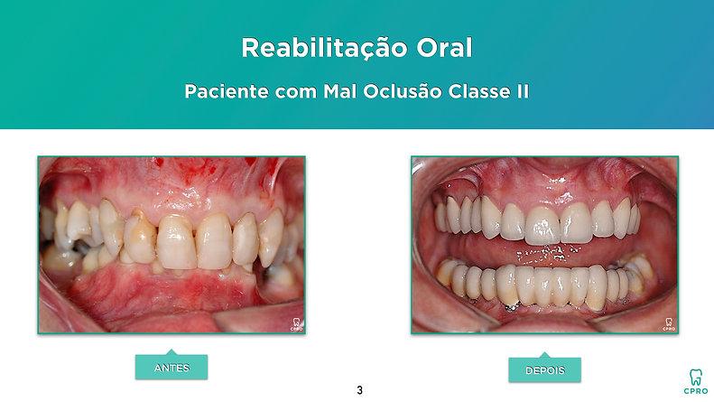 Reabilitação Oral em Paciente com Mal Oclusão Classe II