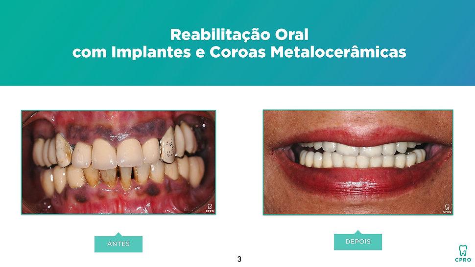 Caso Clínico de Reabilitação Oral com Implantes e Coroas Metalocerâmicas