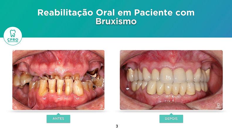 Reabilitação Oral em Paciente com Bruxismo