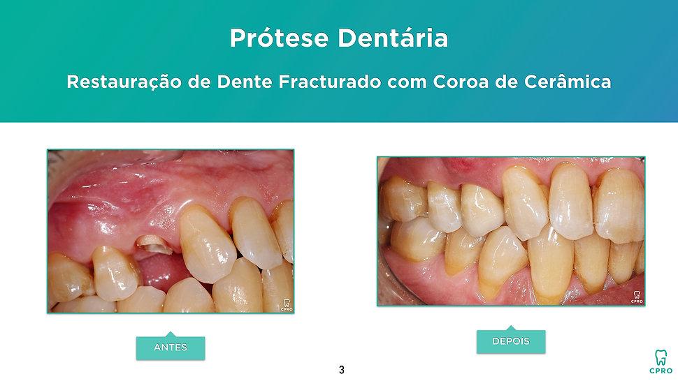 Caso Clínico de Prótese Dentária - Restauração de Dente Fracturado com Coroa de Cerâmica