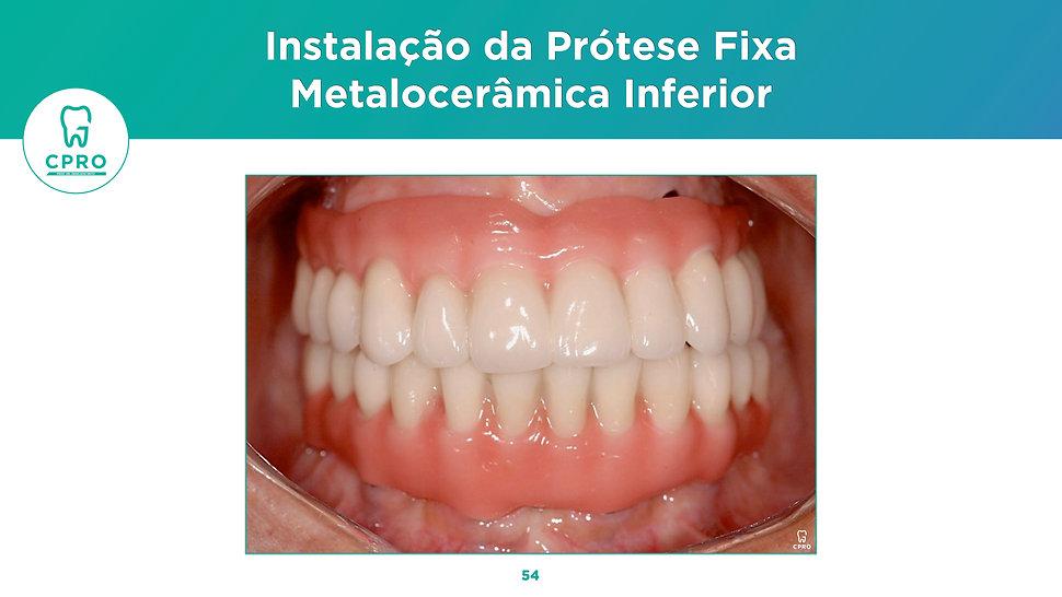 Reabilitação Oral com Implantes - Protocolo Duplo