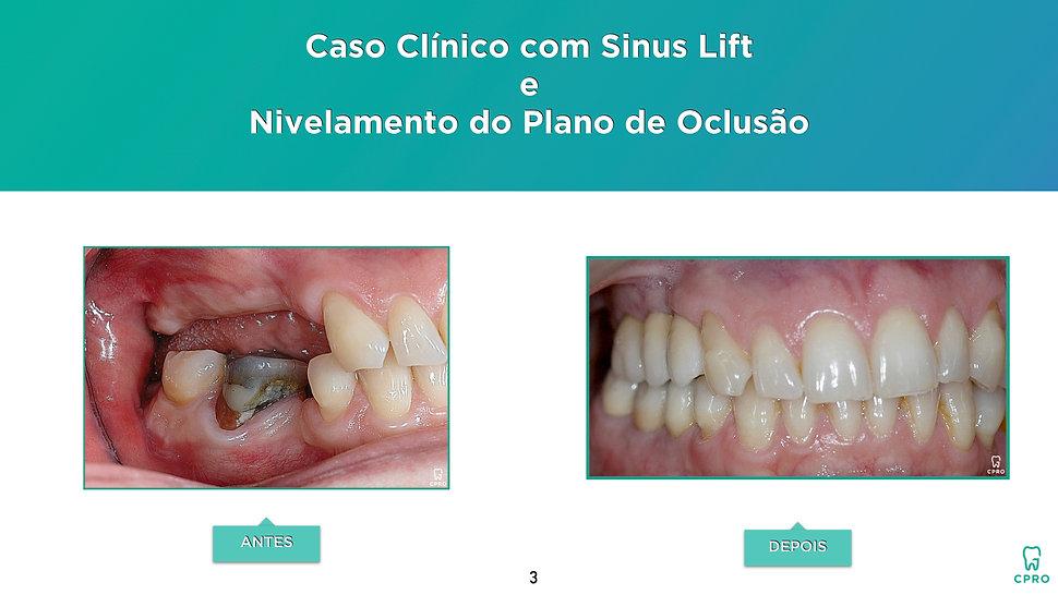 Caso Clínico com Sinus Lift e Nivelamento do Plano de Oclusão