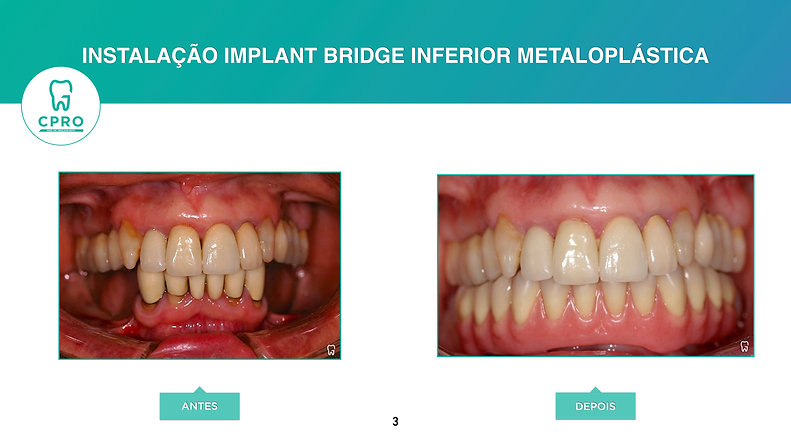 Implant Bridge Inferior Metaloplástica