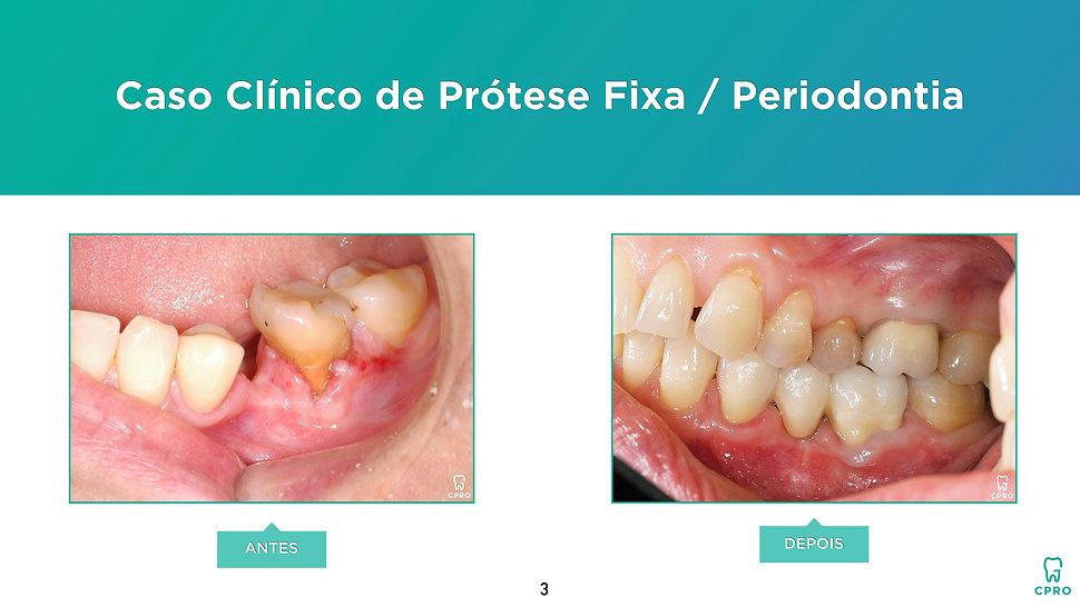 Caso Clínico de Prótese Fixa e Periodontia