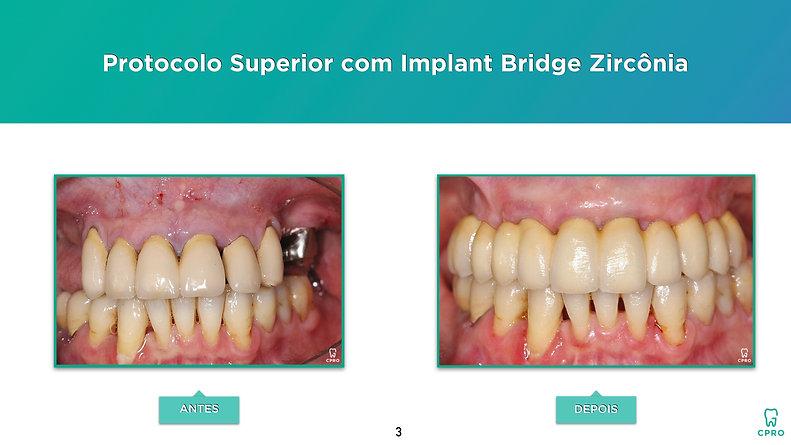 Caso Clínico de Reabilitação Oral de um Paciente Periodontal (Protocolo Superior com Implant Bridge Zircônia)