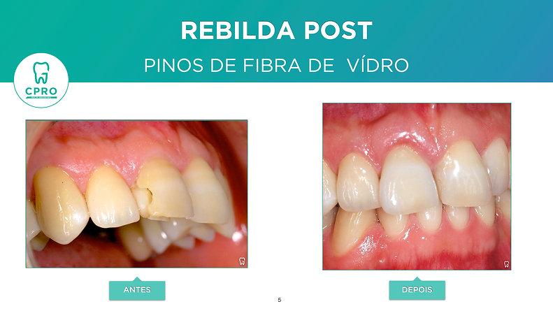 Reconstrução de Dente Anterior Fraturado com Pino de Fibra de Vidro e Coroa Cerâmica. - HD 1080p