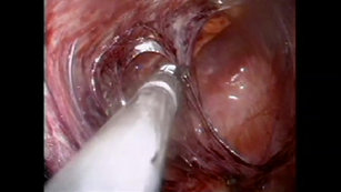 Laparoscopic Surgery by John H Marks, MD and Susanna Carlisle