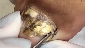Tratamento de Micose - Caso Crônico