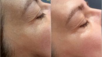 Gua Sha Eye Treatment