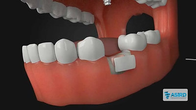 Bone Grafting Overview