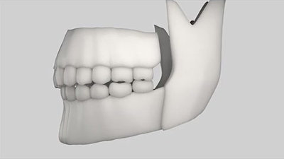 Jaw Orthognathic Surgery Overview