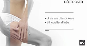 endermologie® Corps