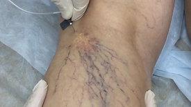 Лечение варикоза методом склеротерапии
