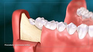 3rd Molar Extraction Surgery