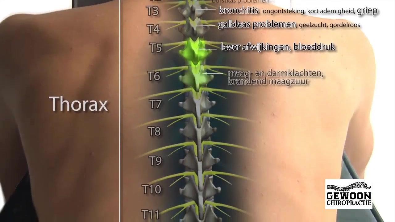 Video Chiropractie