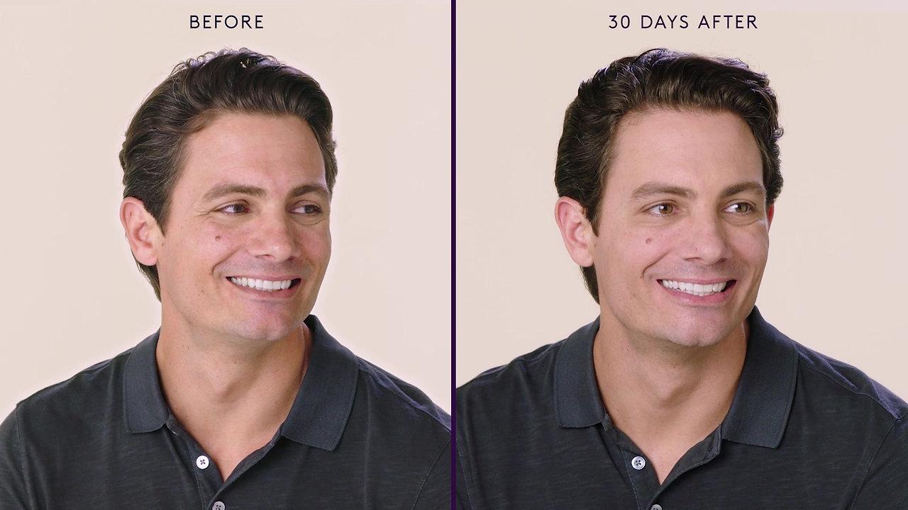 Male Botox / Brotox