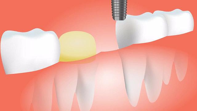 Dental Videos