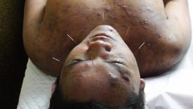 Acne & Eczema Treatment - Part 1