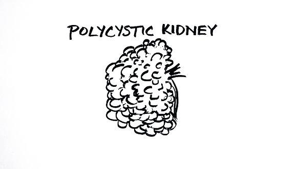 Normal Kidney vs. Polycystic Kidney