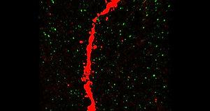 Lphn2-mVenus Synapses