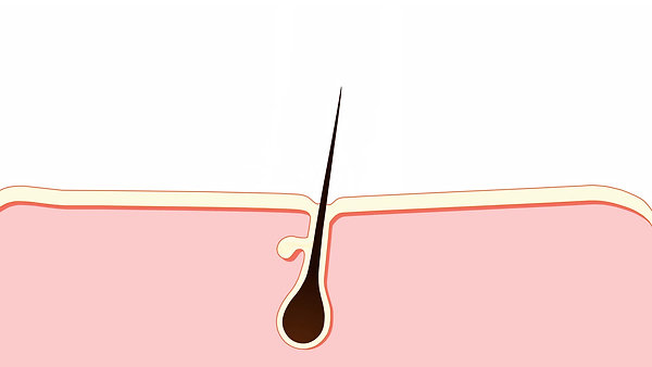 Laser Me Hair Removal