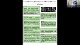 Acute rare Presentation of Dural Arteriovenous Malformation (AVF) in young patient by Dr MIK Omer