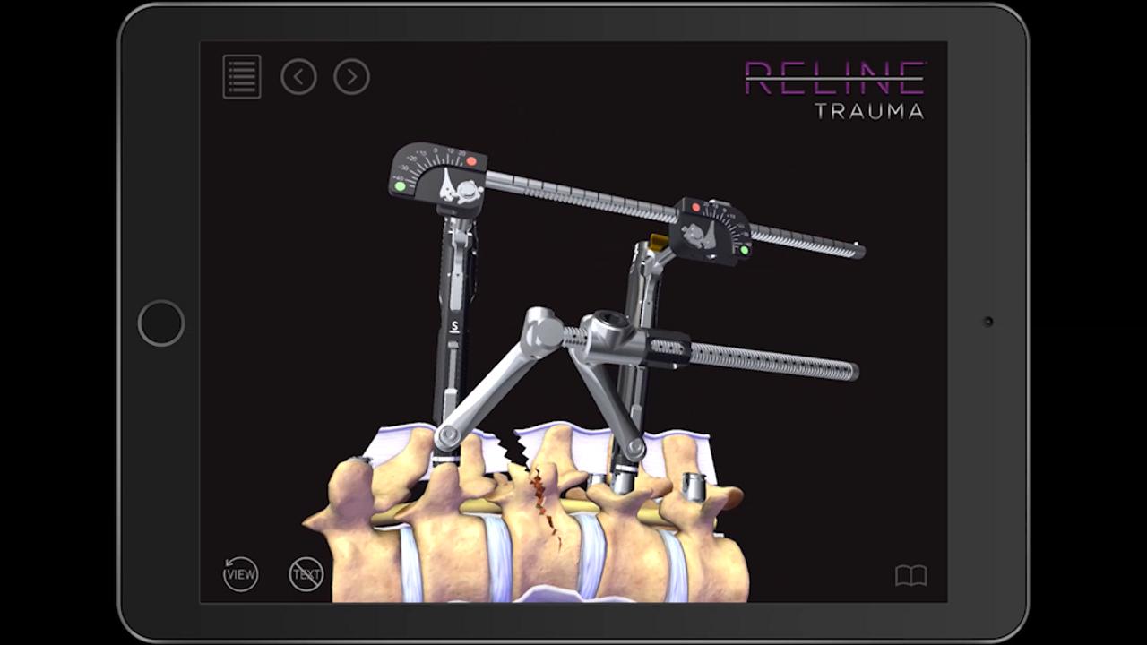 Reline Trauma App Demo