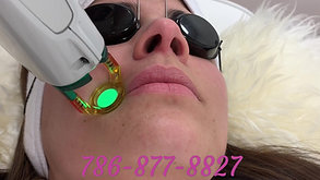 Hair Laser Removal / Depilacion Laser