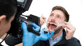 Live Dental Photography Demo