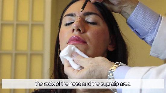 Aplicación de Hyacorp en la nariz