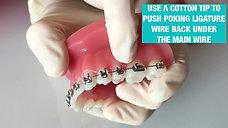 Sharp ligature wire near a bracket