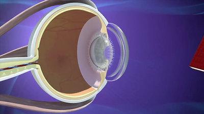 Cataract (English)
