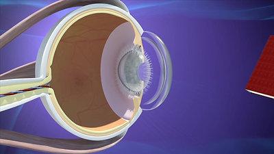 Cataract (Español)
