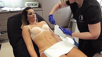 OMG!! I TRIED COOLSCULPTING!!! Hollywoods secret non surgical fat removal...