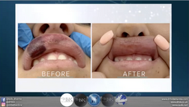 Facial Aesthetics SOS / Episode 2: LIPS - The Good, The Bad and The Ugly, with Dr Manrina Rhode