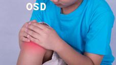 Bonus video for Osgood Schlatter's Disease (OSD) episode (season 1 episode 4)