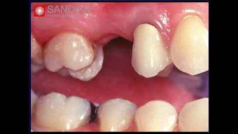 Tooth Replacement Options (Hindi)