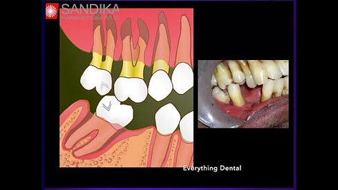 Why Replace Teeth (Hindi)