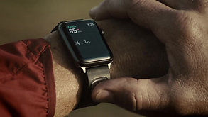 THE EKG FOR APPLE WATCH