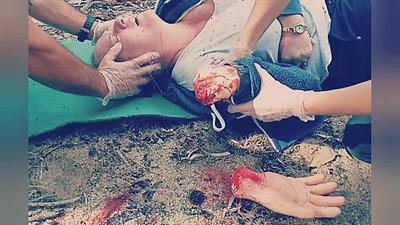 RAW First Aid